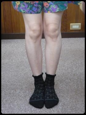 美脚矯正(0脚矯正) 施術後は、両膝の間隔が狭くなっています。 【足利 なごみ整骨院】