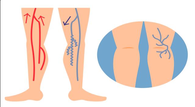 「下肢静脈瘤」の説明画像です。