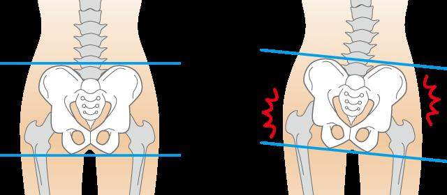 なぜ?腰痛や緩んだ体型がなごみ整骨院の「産後の骨盤矯正」で改善するのか?