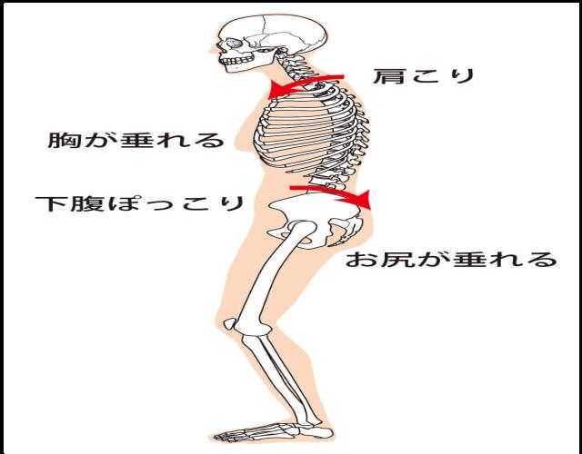 猫背になると、胸が垂れ、下腹部がポッコリ、お尻も垂れて、肩こりも起こりやすくなります。