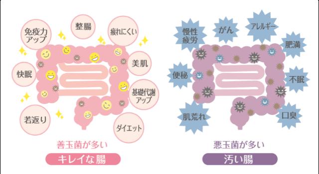 「便秘」の汚い腸ときれいな腸の説明画像です。